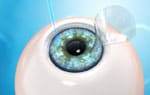 Individualized LASIK