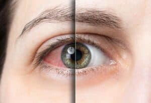 Dry Eye Treatment San Jose